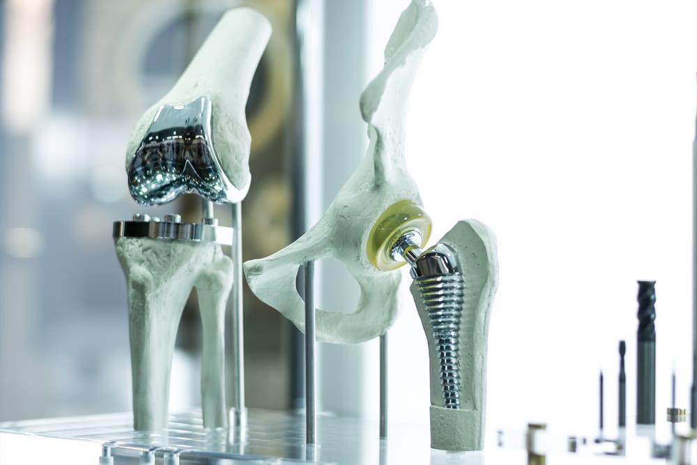 Protesis-de-rodilla-y-cadera-para-medicina - imprimir maquetas en 3D