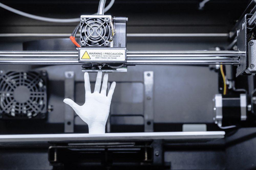 Férulas impresas en 3D: Lo que debes saber